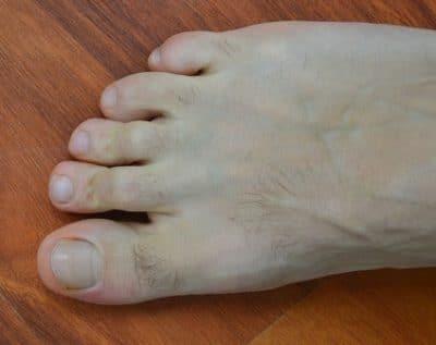 dita,martello,alluce,piede,dolore,deformazione,malformazione,deformità