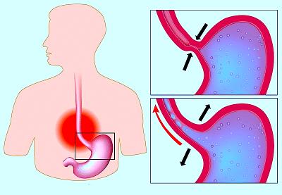 Esofagite da reflusso gastroesofageo,sfintere chiuso