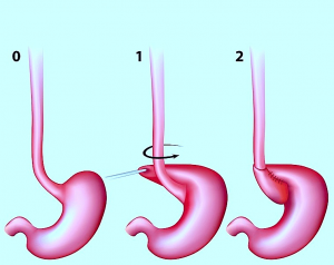 Intervento chirurgico per ernia iatale, fundoplicatio