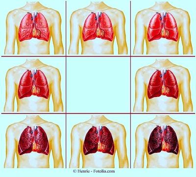 Smettere di fumare,polmoni,danni