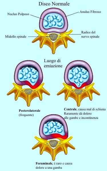 ernia,posterolaterale,centrale,foramina,bulging,protrusione