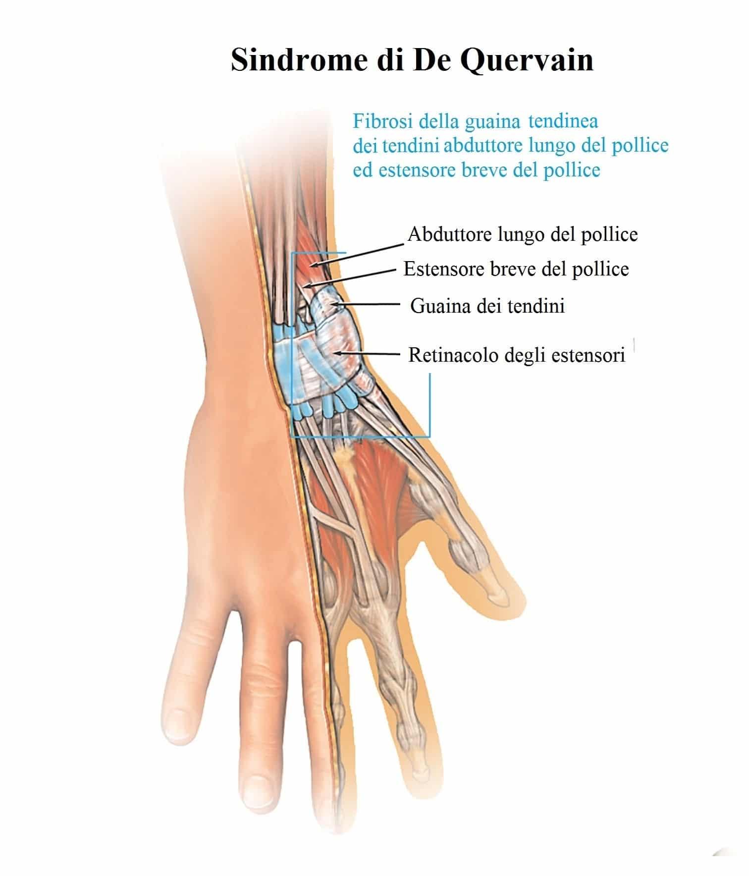 dolore alle dita della mano destra o sinistra e polso