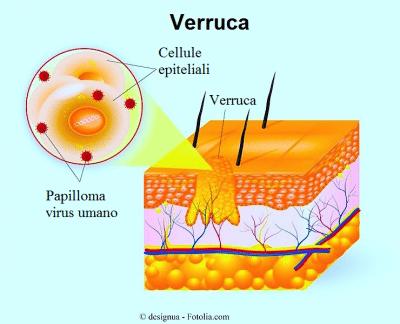 Verruca,piede,pelle,papilloma virus
