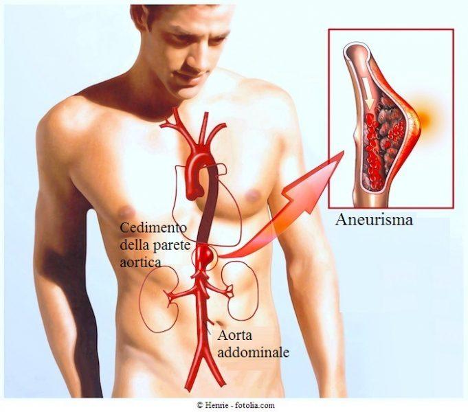 Aneurisma-dell-aorta-addominale-o-toracica-intervento-chirurgico