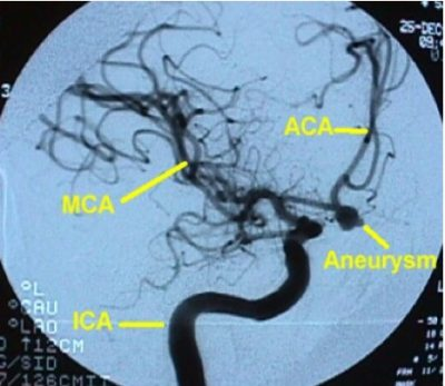 angiografia cerebrale, aneurisma sacculare, arteria comunicante anteriore