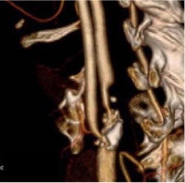 angiotomografia, carotide, placca
