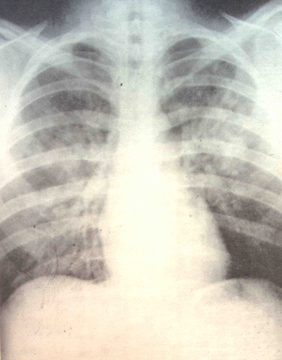 ematoma polmonare