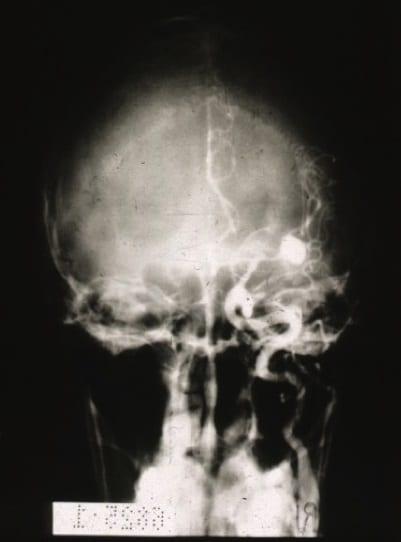 Anuerisma dell'arteria cerebrale media