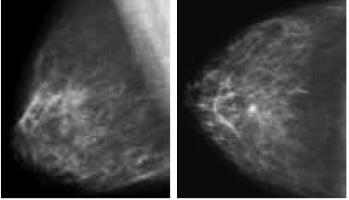 Carcinoma duttale in situ