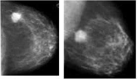 Carcinoma duttale invasivo, mammografia