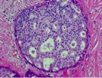 DIN1C - biopsia