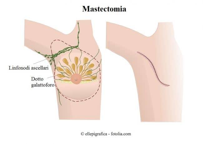 mastectomia, cancro al seno