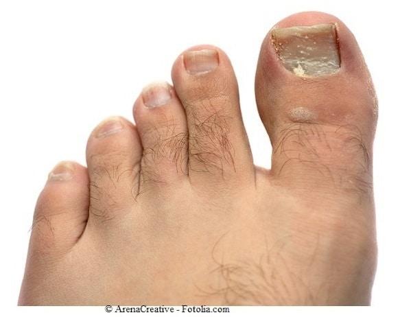 unghie bianche e rugose