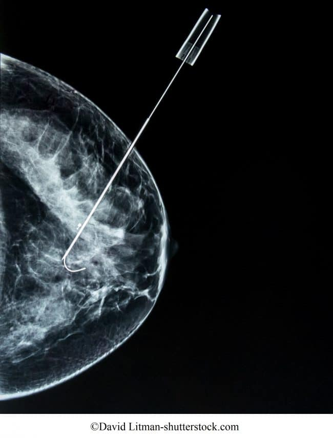 agoaspirato guidato da mammografia