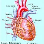 Bypass, coronarie, blocco circolazione vene