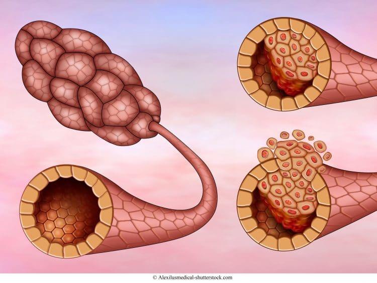 carcinoma duttale invasivo