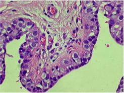 LIN2, necrosi, microcalcificazioni