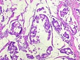 Biopsia, carcinoma mucinoso