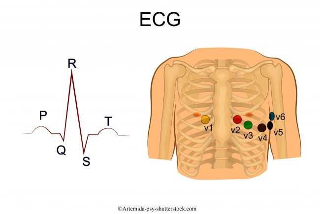 ecg, V1, V2, V3, V4, V5, V6