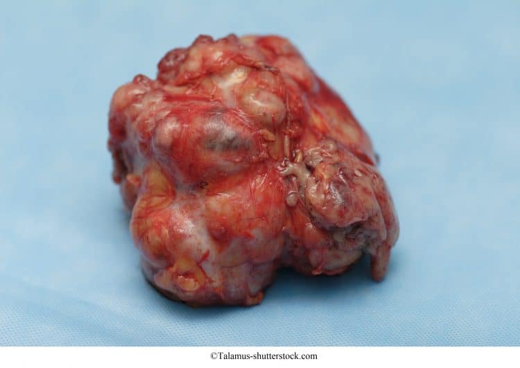 fibroadenoma,grande,tumore benigno