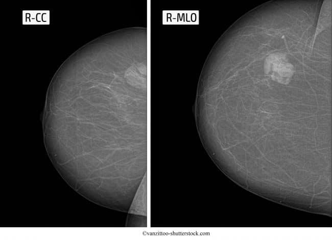 fibroadenoma, mammella, destra