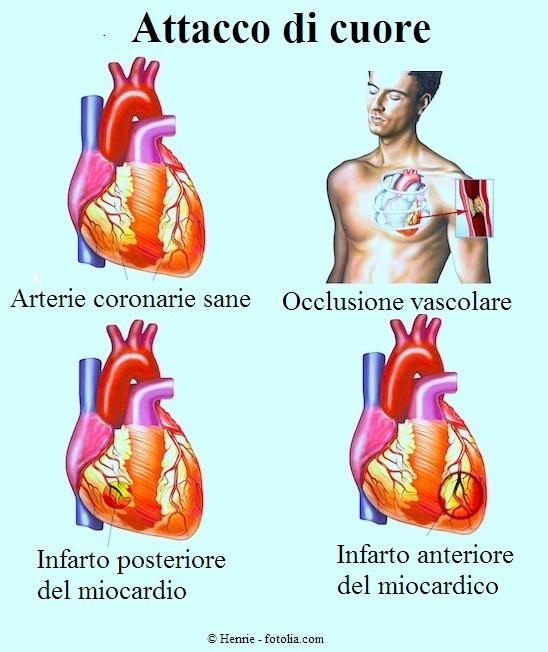 infarto anteriore, posteriore, coronarie
