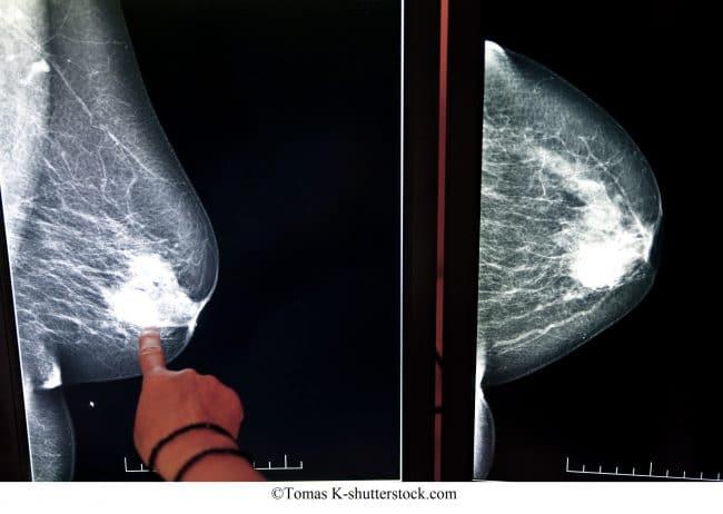mammografia, cancro al seno
