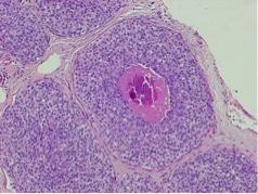 LIN3, necrosi, microcalcificazione-