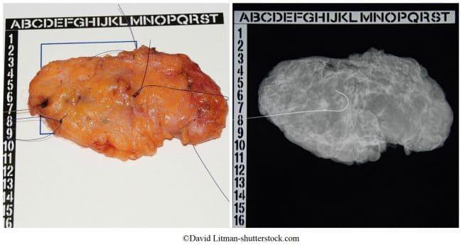 nodulectomia, 5mm, massa