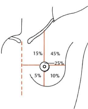 Frequenza del cancro al seno, quadranti