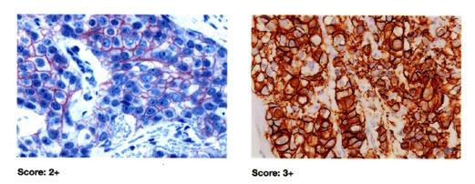 Score,her2,cancro al seno