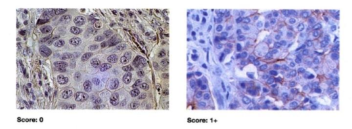 Tumore al seno, score HER2