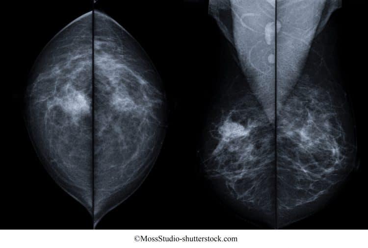 tumore, seno, destro, mammografia