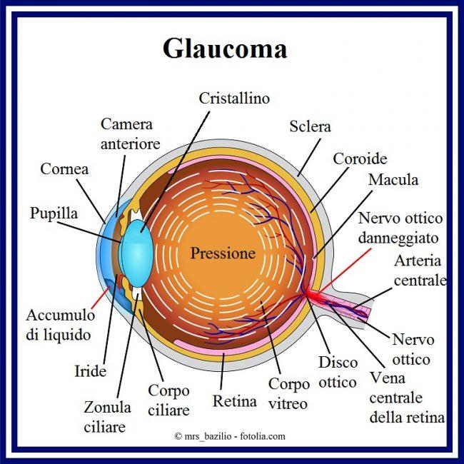 3-Glaucoma-pressione-oculare