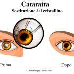 Cataratta-intervento-cristallino