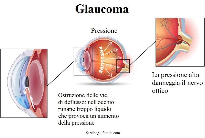 Glaucoma-nervo-ottico