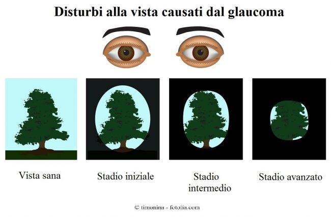 Glaucoma-perdita-vista-periferica