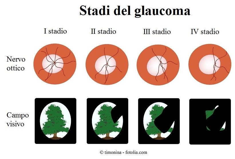 Glaucoma-stadi