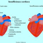 INsufficienza-cardiaca