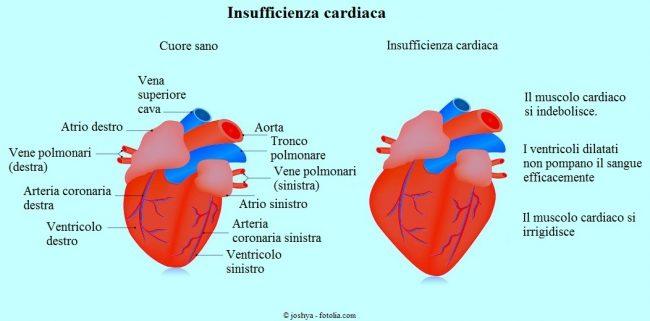 INsufficienza-cardiaca
