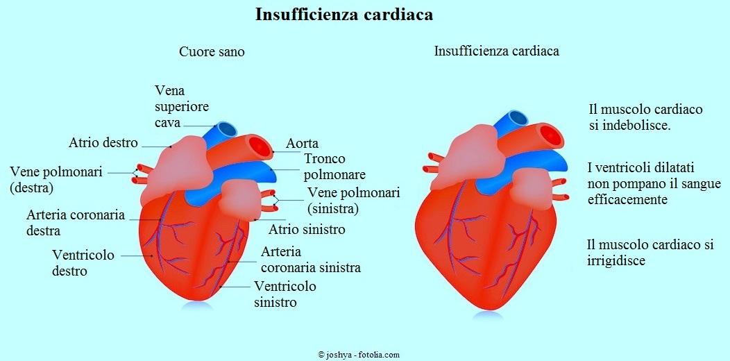 disfunzione cardiaca