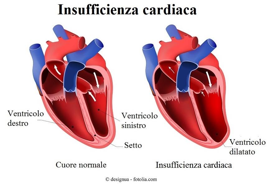 Insufficienza cardiaca, ventricolo dilatato
