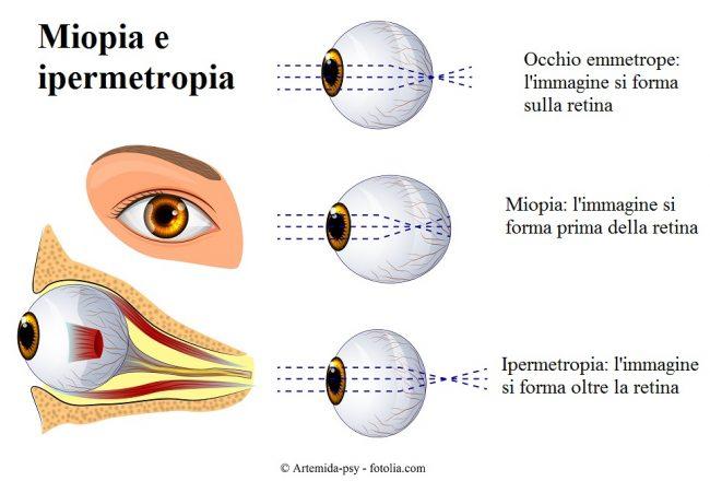 Miopia-ipermetropia