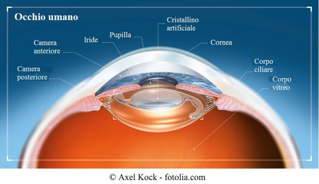 Occhio-cristallino-artificiale