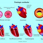 Patologie cardiache