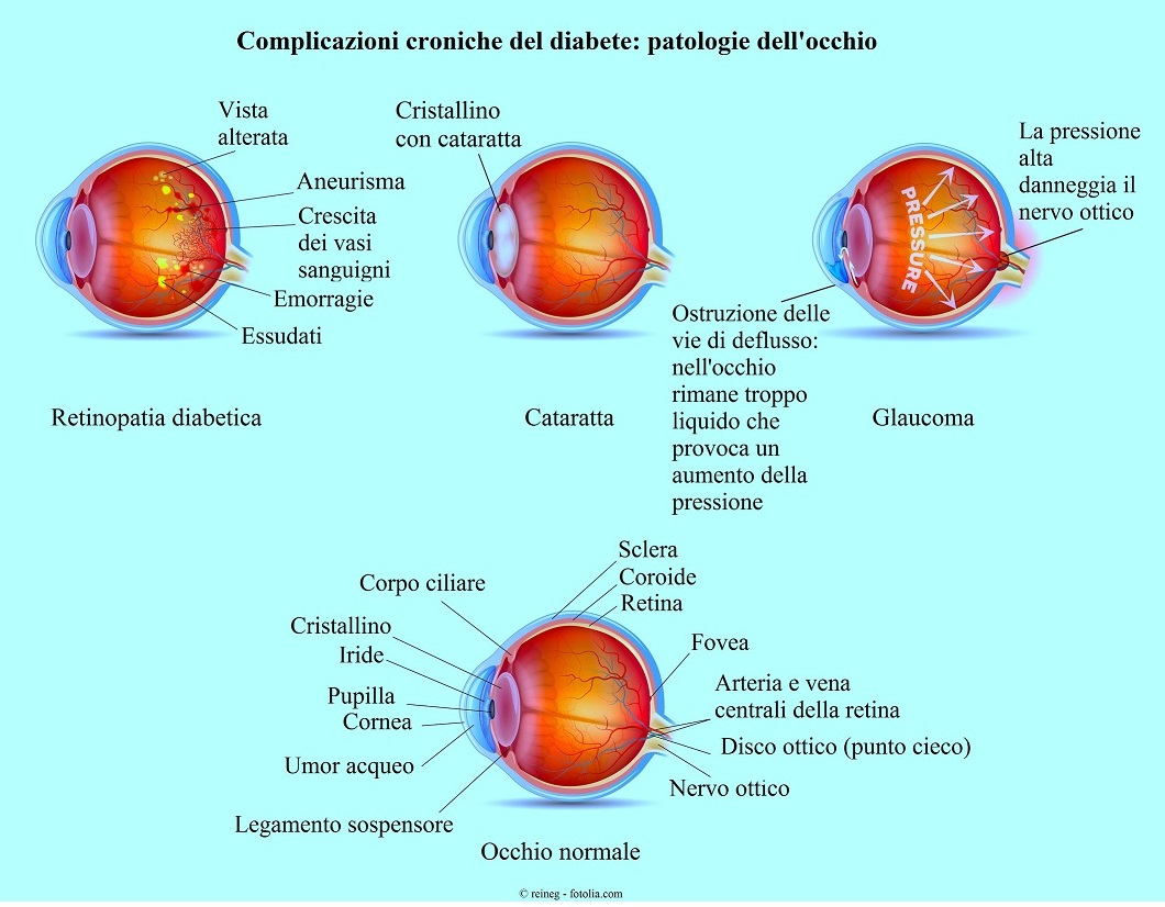 Patologie-occhio-retinopatia-glaucoma