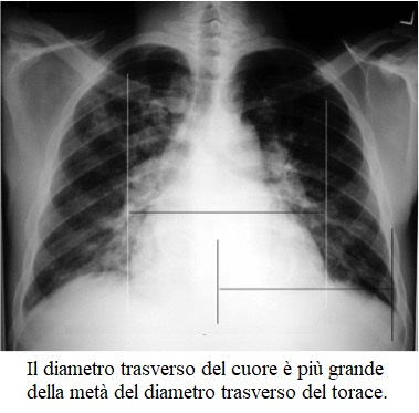 Radiografia, scompenso cardiaco
