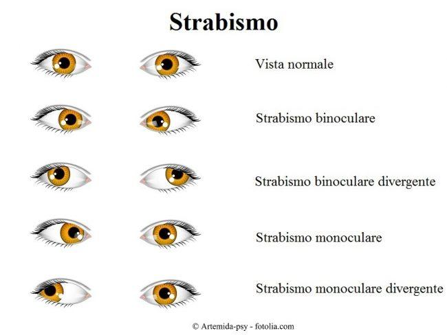 Strabismo