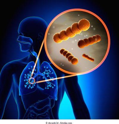 Streptococcus-Gram-positivo
