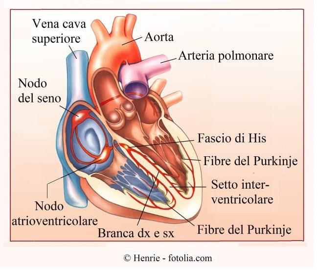 aritmia cardiaca, nodo seno